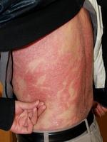 乾癬性紅皮症
